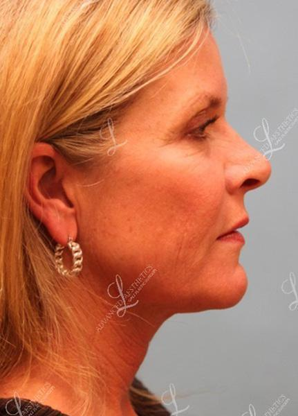 Gallery image about facelift