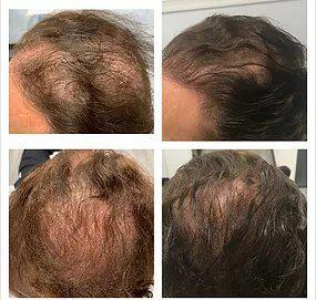Gallery image about hair restoration