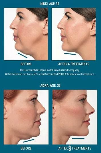 Gallery image about kybella