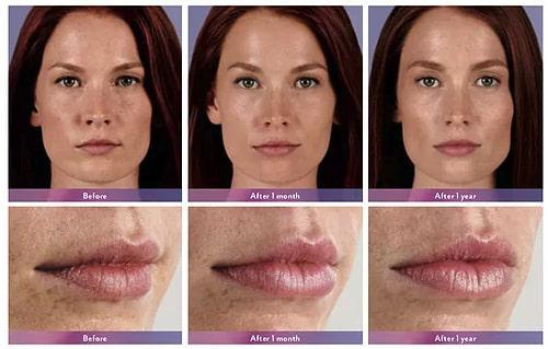 Gallery image about lip augmentation