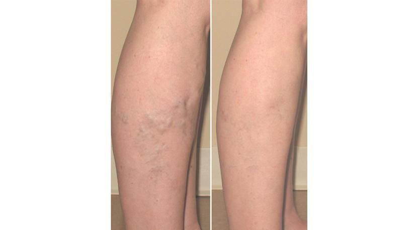 Gallery image about Before & After – varicose veins