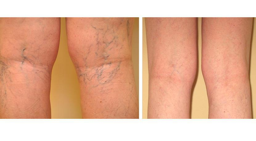Gallery image about Before & After – spider veins