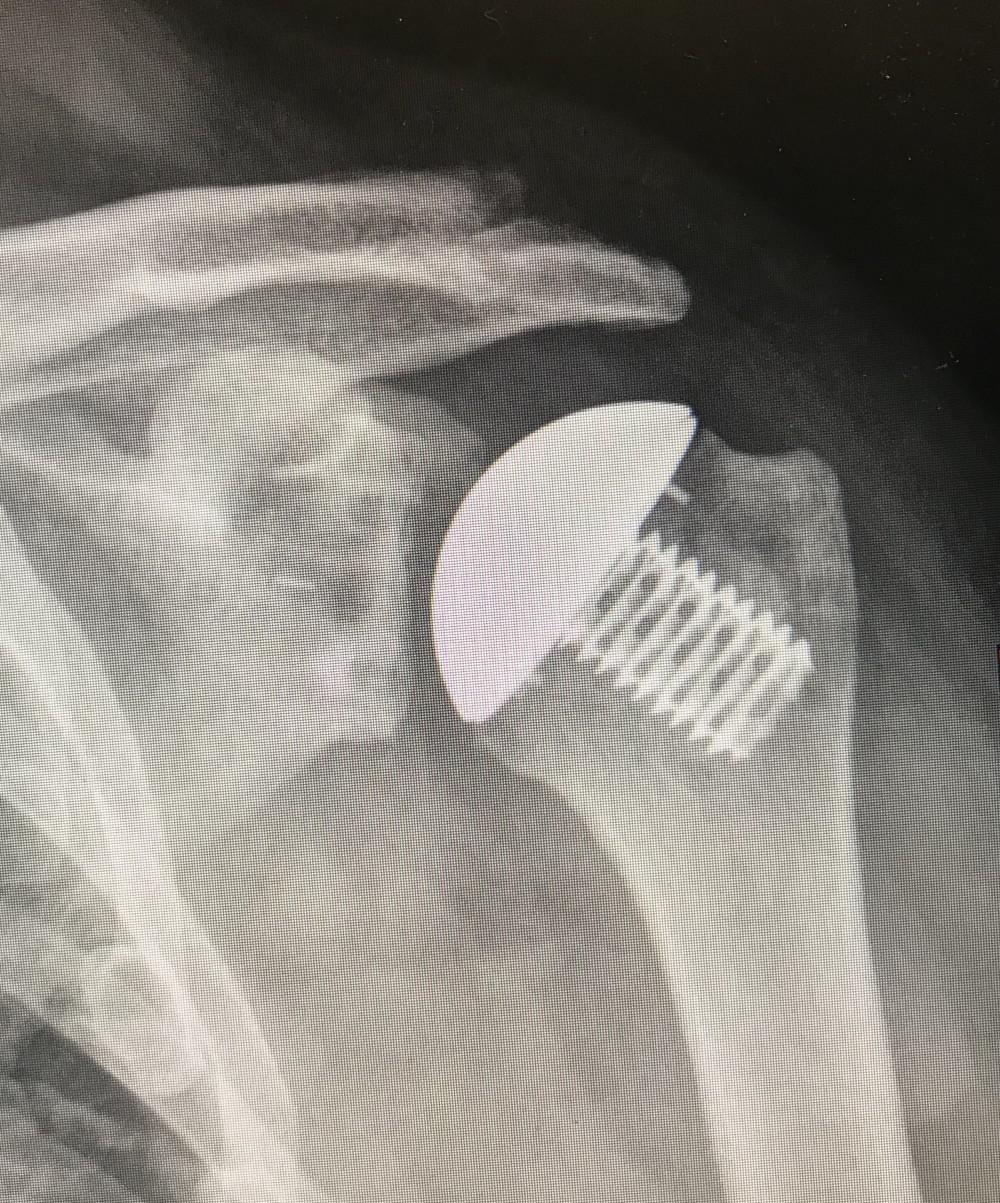 Stem-less Total Shoulder Replacement