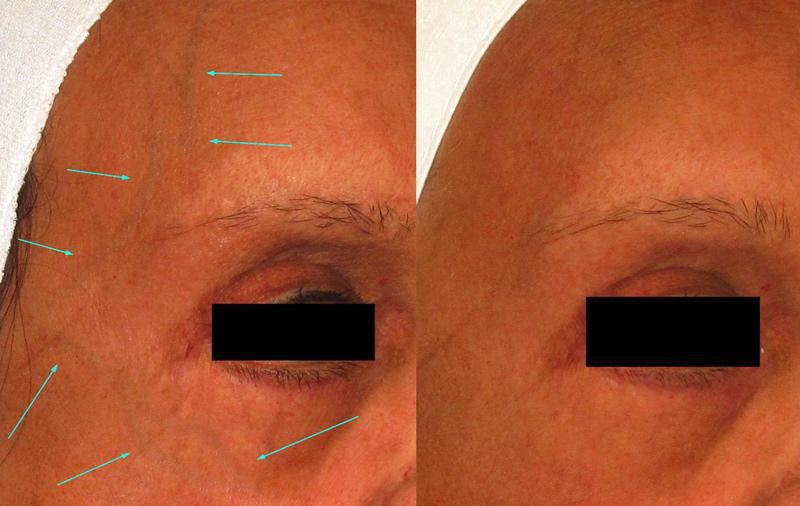 Gallery image about Before & After – blue eye veins