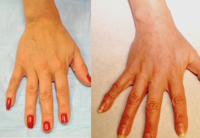 Gallery image about Before & After – hand Sclerotherapy