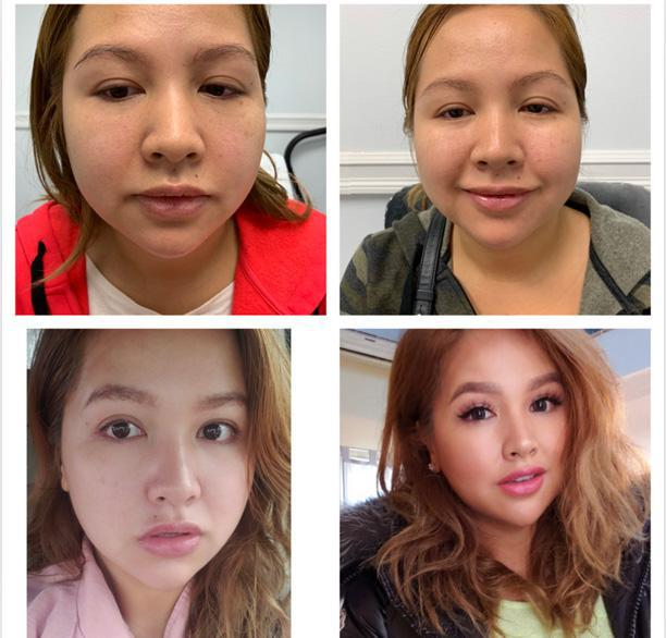 Gallery image about botox