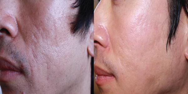 Gallery image about microneedling before and after