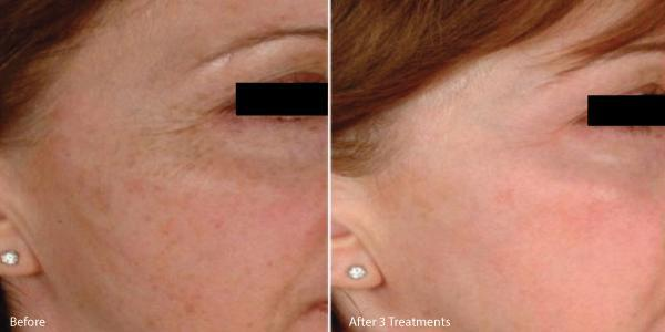 Microneedling with PRP for hyperpigmentation