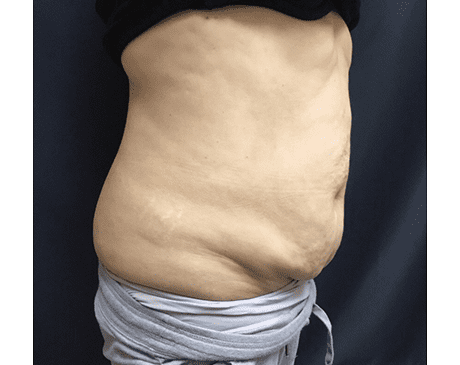 Gallery image about SculpSure Body Contouring Before and After Gallery