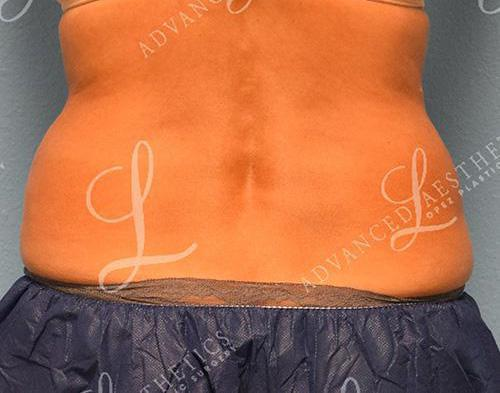 Gallery image about coolsculpting
