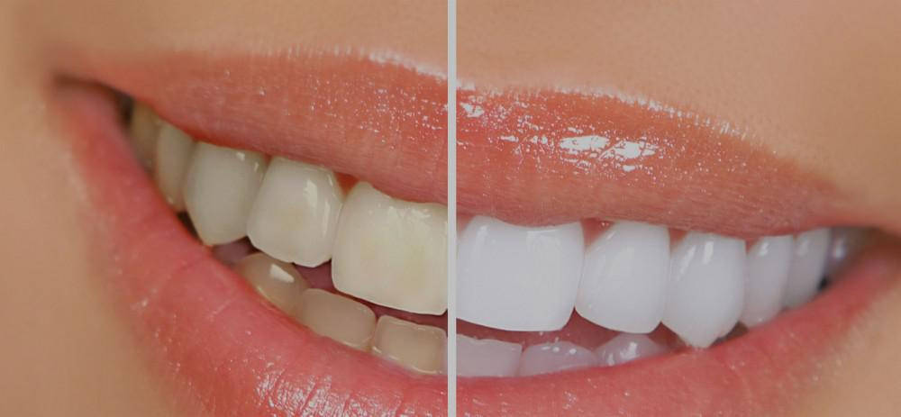 Teeth Whitening Specialist Gardena, CA