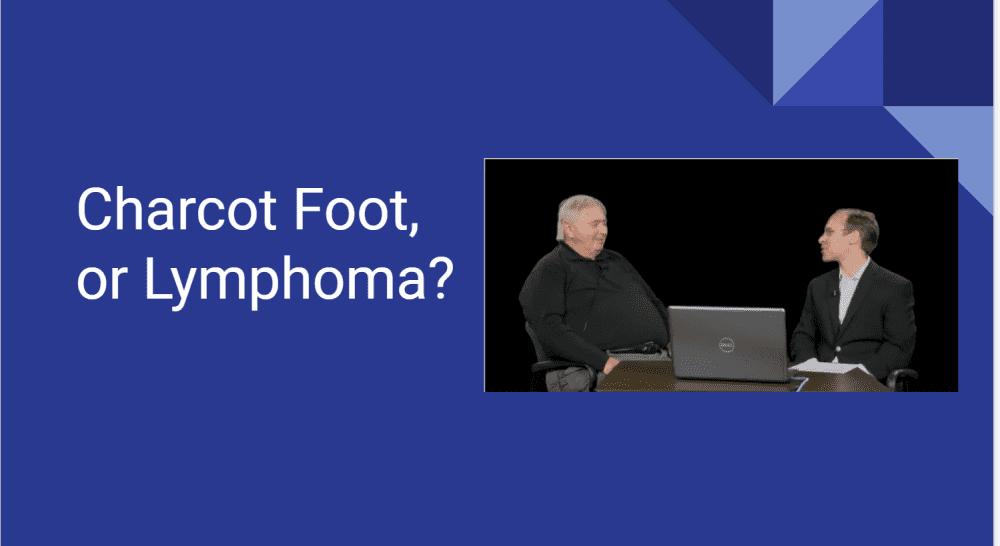 Interview with patient with Charcot foot that was actually Lymphoma