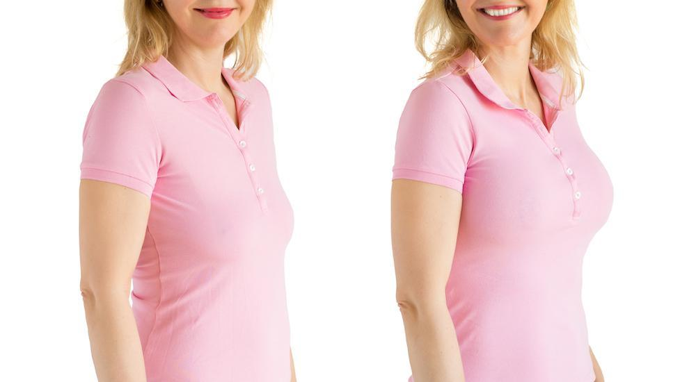 Both a breast lift and breast augmentation are designed to make you happier with the appearance of your breasts. How each of
