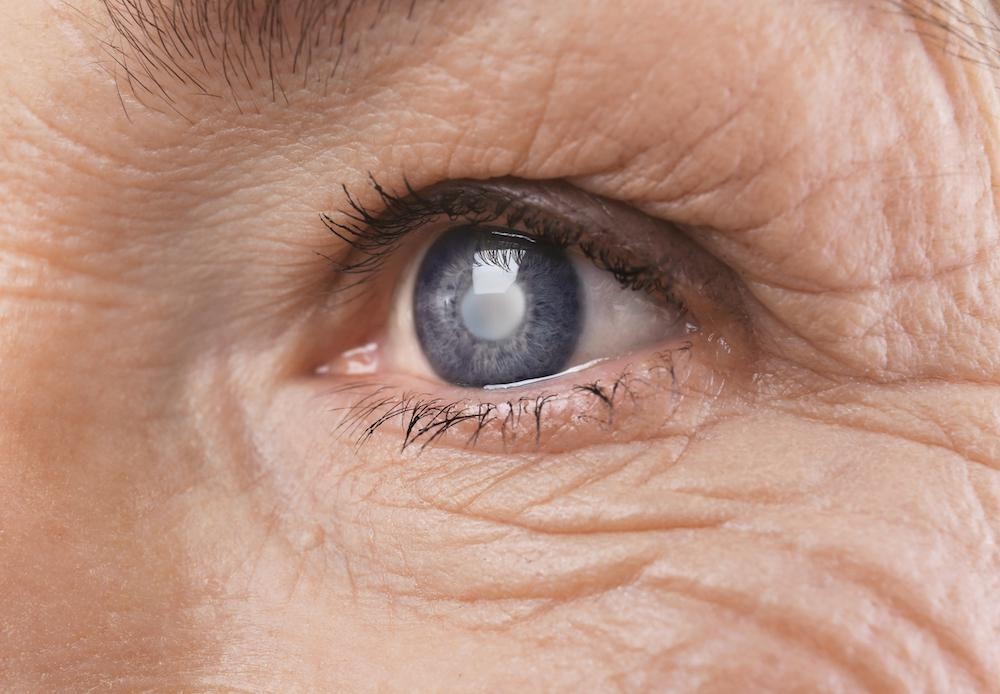 It can be scary to learn you have glaucoma. But even if you already have this condition, it doesn't mean you have to lose you