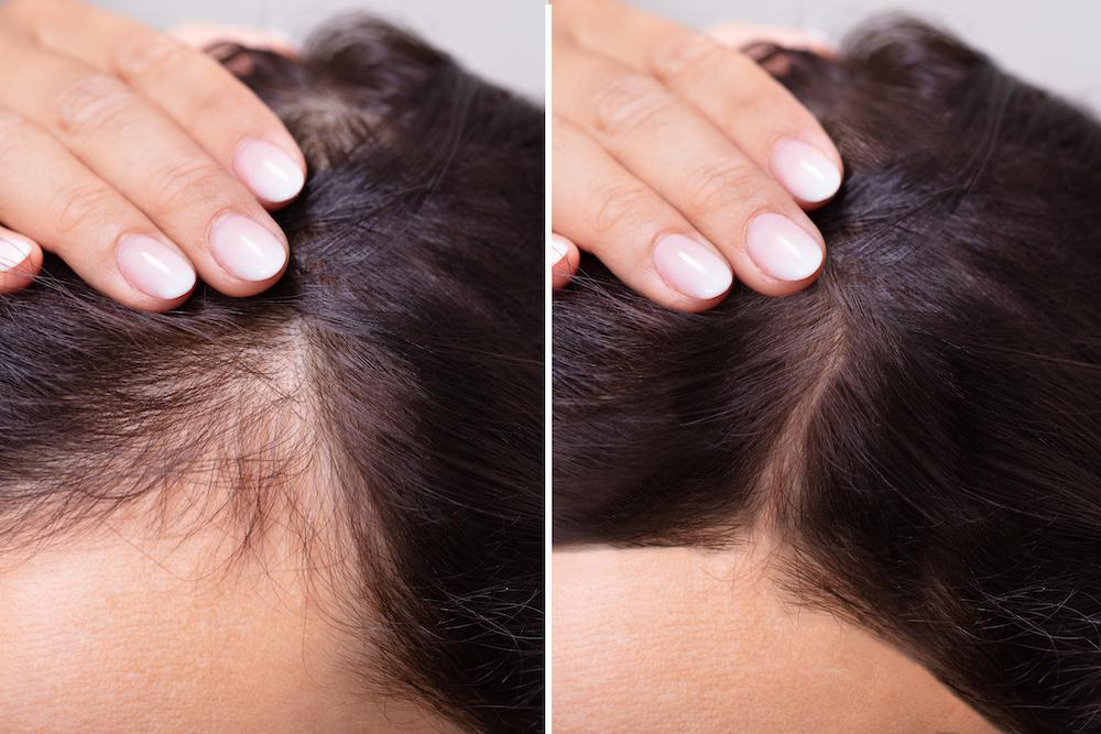 Common Causes Of Female Hair Loss And How To Remedy It With Prp Stirling Skin Care Clinic Skin Care Clinics