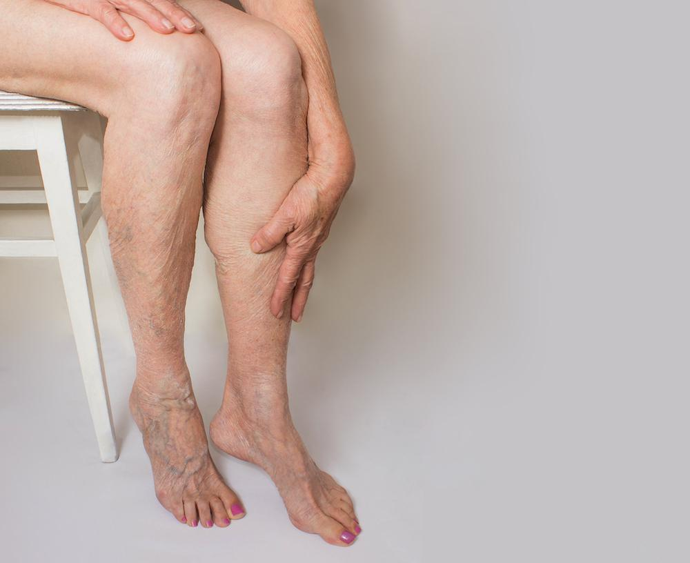 Do varicose veins have you hiding your legs under long pants even in the dog days of summer? If so, know that treatment to re
