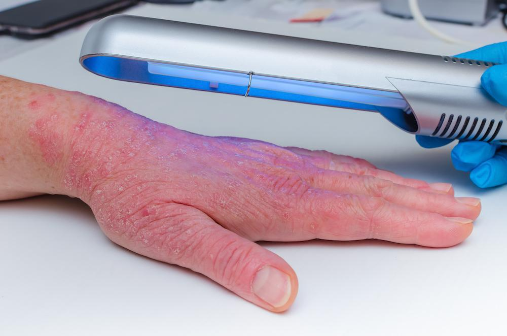 Psoriasis can cause red and scaly rashes on the skin. If you have psoriasis, there hope. Light therapy can reduce inflammatio