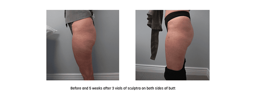 Do you wish you had more volume and lift in your derriere, but the thought of butt lift surgery isn't appealing? You can have