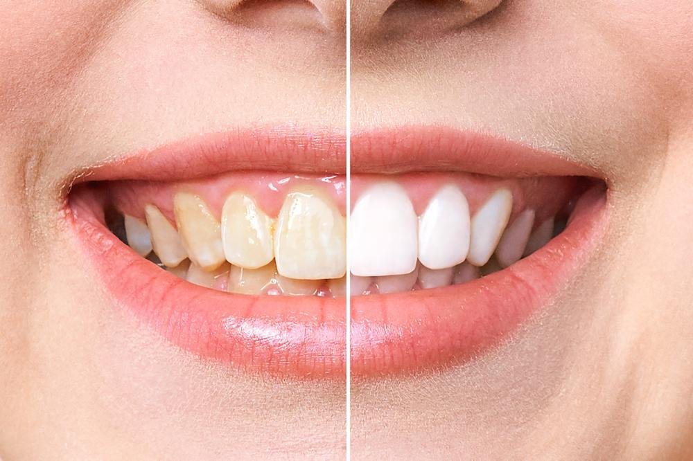 Are your dingy teeth showing your age? Yellowed or stained teeth may make you seem older than your years. If you want to look