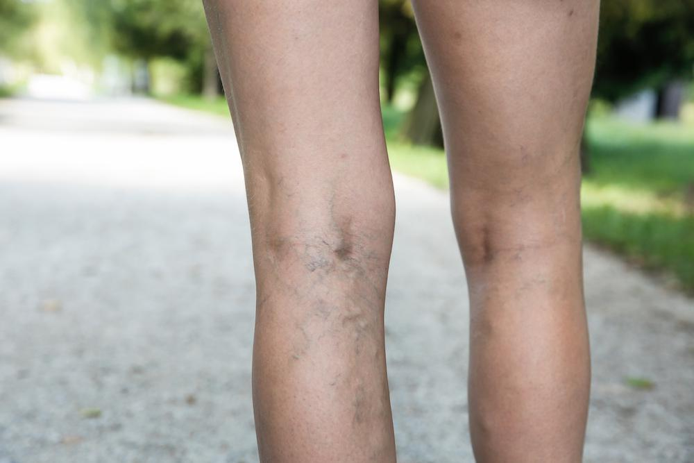 Also called spider veins, distended or discolored varicose veins are a natural result of aging or stress on your circulatory