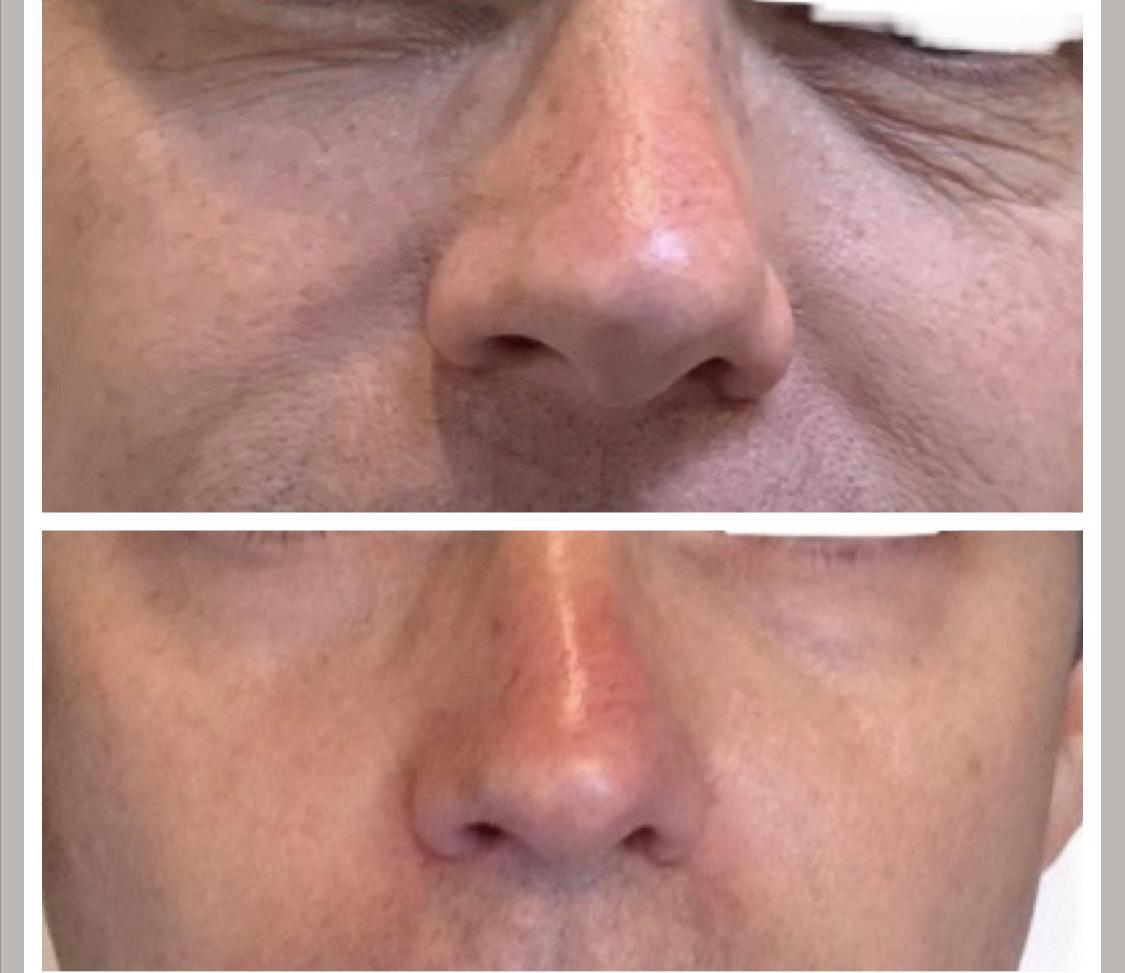Gallery image about microneedling