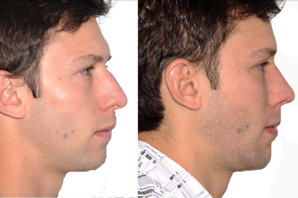 Gallery image about Rhinoplasty (Nose Surgery)
