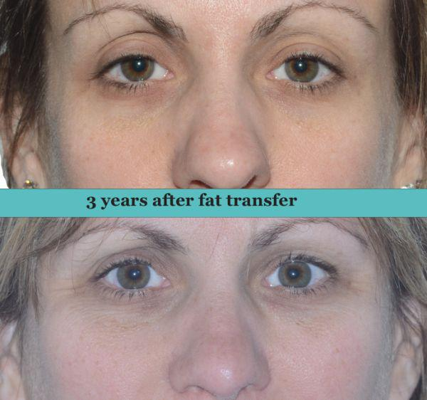 Gallery image about Fat Transfer to Face