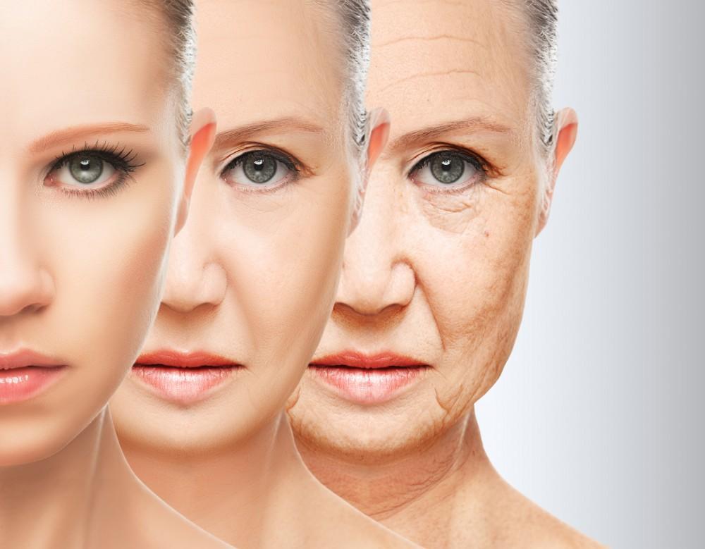 Botox Decreases Fine Lines & Wrinkles
