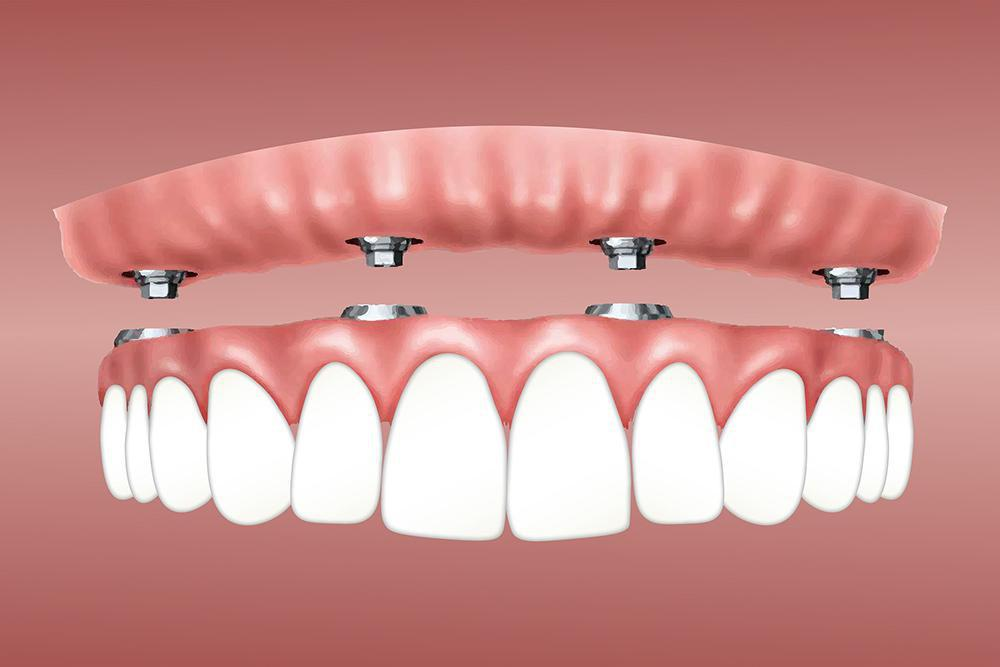 Implant denture