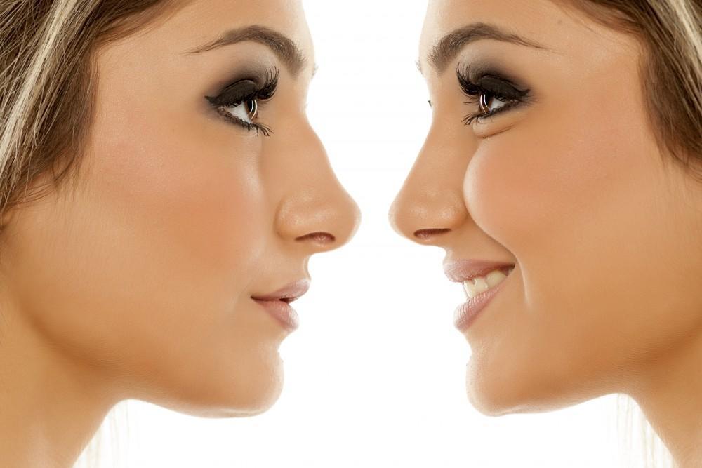 Surprising Benefits of Rhinoplasty: Lakeshore Ear, Nose & Throat ...