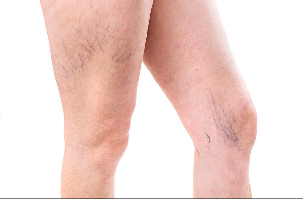 how to get veins in legs