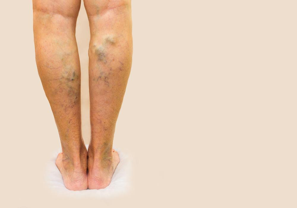 Big, ugly varicose veins don't just ruin your look in a bathing suit; they can hurt your overall vascular health, as well. He