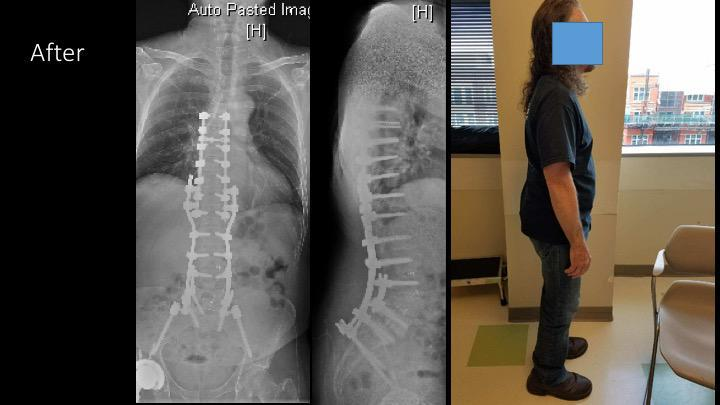Gallery image about Complex Deformity Surgery