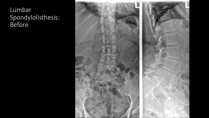 Gallery image about Lumbar Spine Surgery