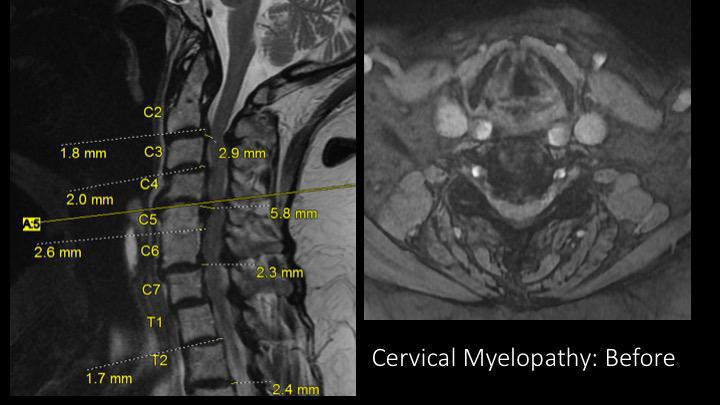 Gallery image about Cervical Spine Surgery