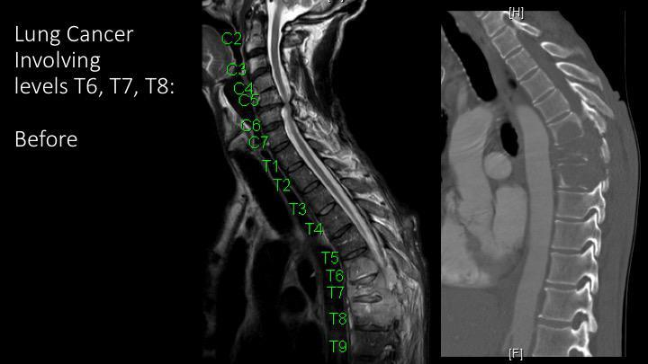 Gallery image about Cancer Spine Surgery