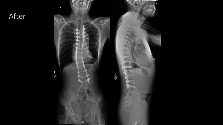 Gallery image about Scoliosis Surgery