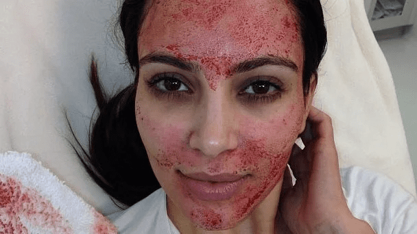 So you heard about vampire facial? Have you heard about fractional CO2 laser skin resurfacing?