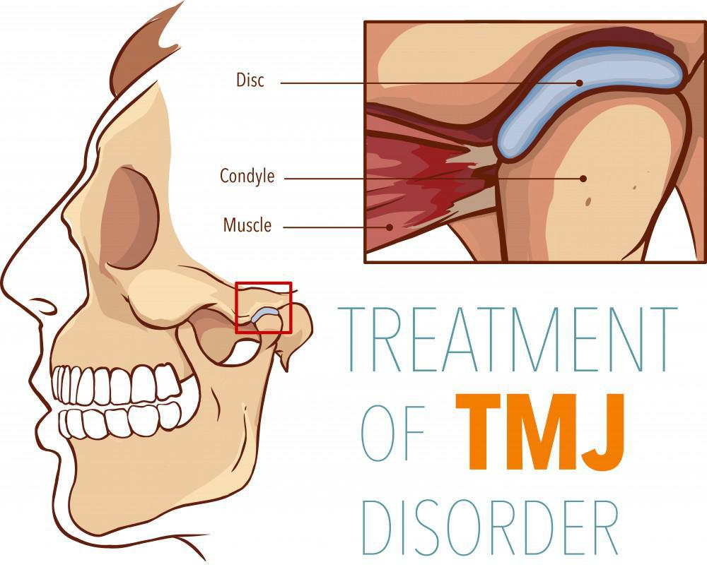 Treatment of TMJ