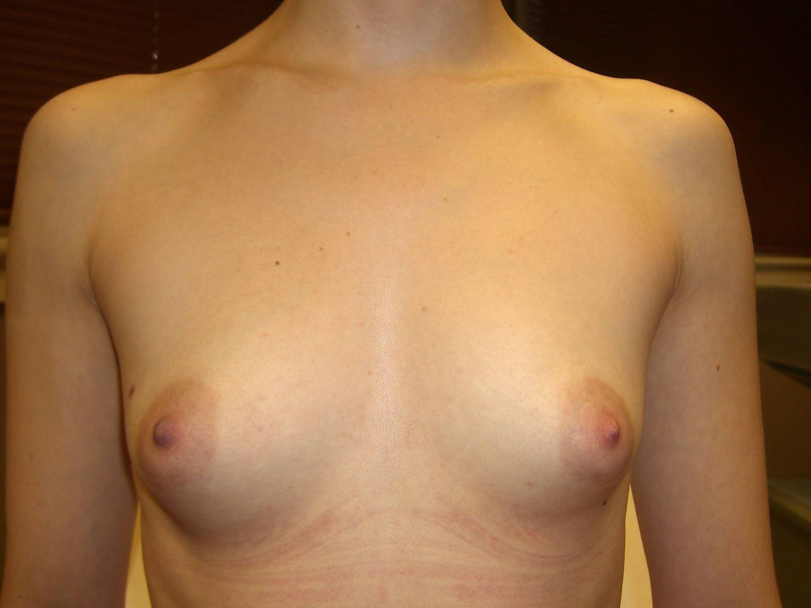 Gallery image about Breast Augmentation Gallery