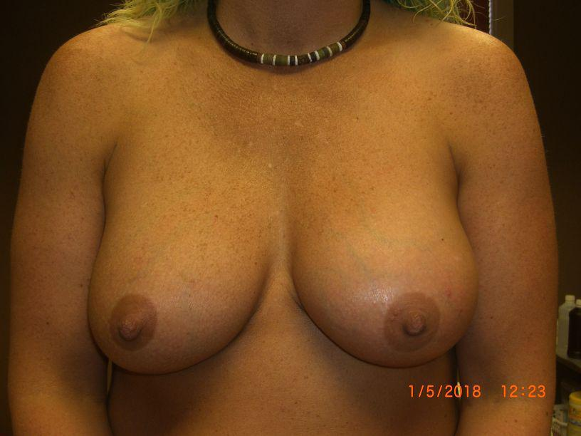 Gallery image about Breast Implant Revision Gallery