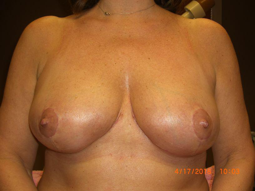 Gallery image about Breast Reduction Gallery