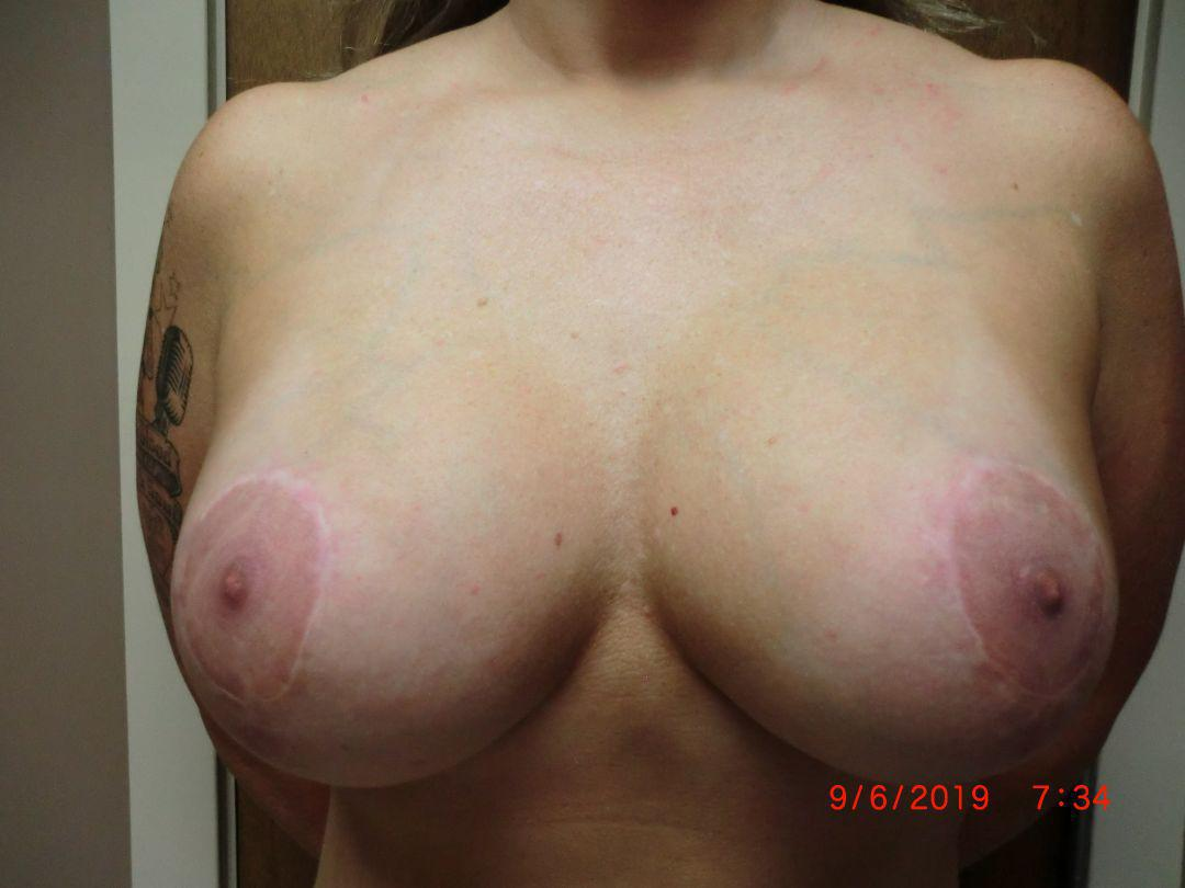 Gallery image about Breast Lift with Implants Gallery