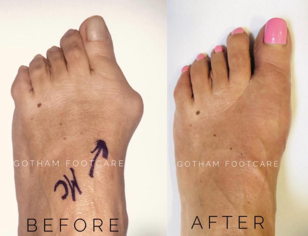 Considering Bunion Surgery Gotham Footcare Podiatrists
