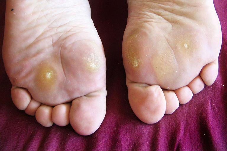 warts foot spreading papilloma mouth cause