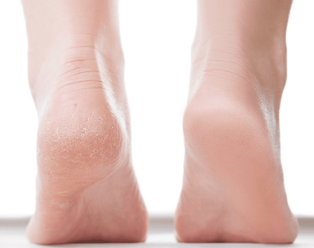 What Really Causes Cracked Heels And How To Heal Them Part I Gotham Footcare Podiatrists