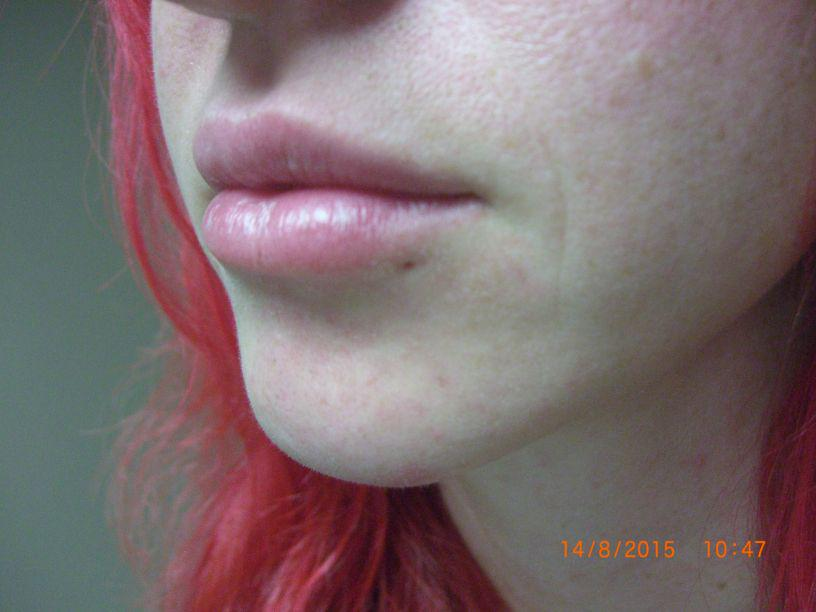 Gallery image about Juvederm Gallery