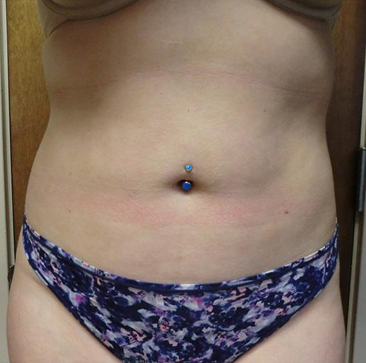 Gallery image about Liposuction Gallery