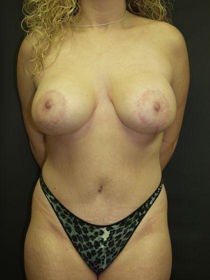 Gallery image about Tummy Tuck Gallery