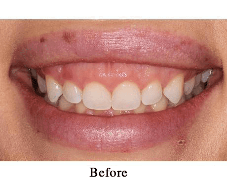 Gallery image about Cosmetic Periodontal Surgery Gallery